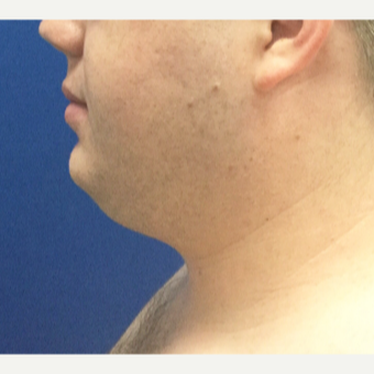 25-34 year old man treated with Laser Liposuction before 3496356