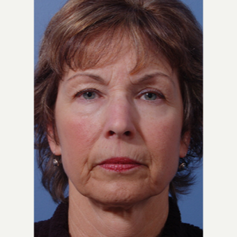 55-64 year old woman treated with Facelift before 3783068