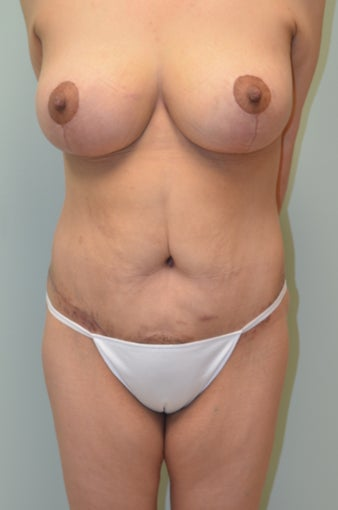 Lower body lift and breast lift after 1059197