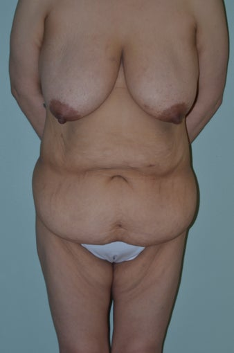 Lower body lift and breast lift before 1059197