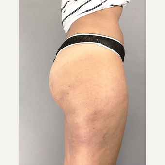 25-34 year old woman treated with Cellulite Treatment after 3684481