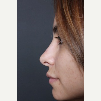 25-34 year old woman treated with Non Surgical Nose Job after 3590825