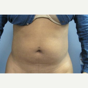 25-34 year old woman treated with Fat Transfer before 1684716