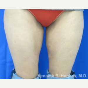 Liposuction Revision after 3164379