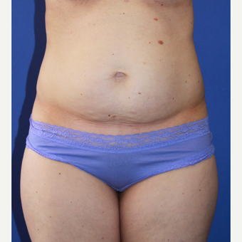 35-44 year old woman treated with Tummy Tuck before 3658551