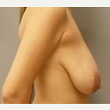 35-44 year old woman treated with Breast Reduction before 3280738