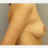 35-44 year old woman treated with Breast Reduction after 3280738