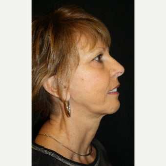 65-74 year old woman treated with Mini Face Lift after 2126759