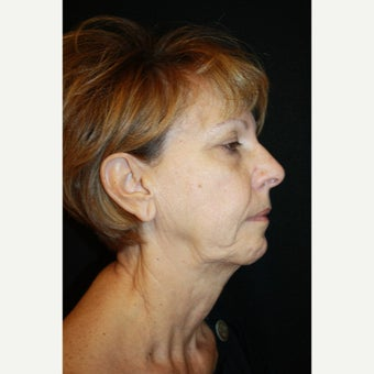 65-74 year old woman treated with Mini Face Lift before 2126759