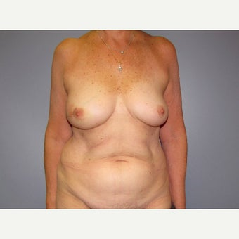 71 year old woman treated with Breast Reconstruction with a DIEP flap before 2550441