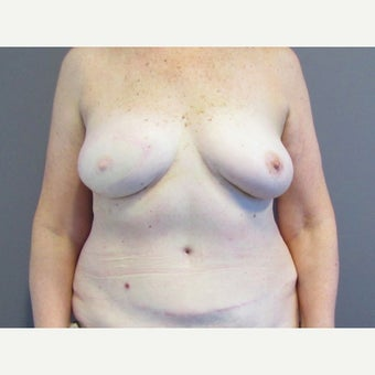 71 year old woman treated with Breast Reconstruction with a DIEP flap after 2550441