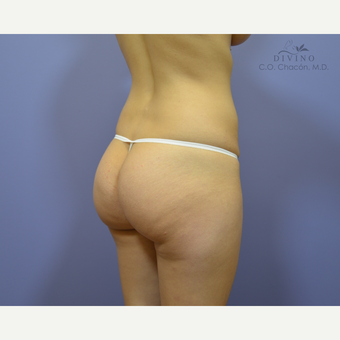 25-34 year old woman treated with Butt Augmentation before 2811748