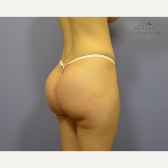 25-34 year old woman treated with Butt Augmentation after 2811748