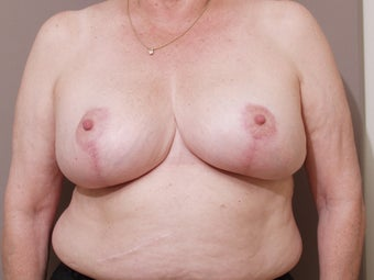 66 year old female, desires breast reduction after 1287741