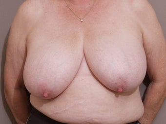 66 year old female, desires breast reduction before 1287741