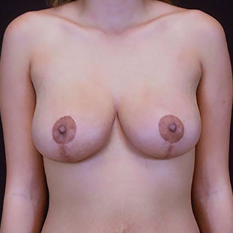 25-34 year old woman treated with Breast Lift after 3283715
