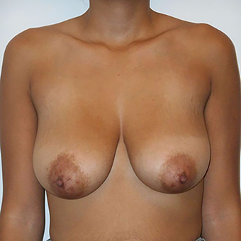 25-34 year old woman treated with Breast Lift before 3283715