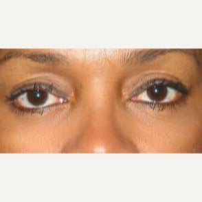 Lower lid blepharoplasty with lateral canthopexy and 2 syringes Perlane to cheeks in 46 year old after 1938314