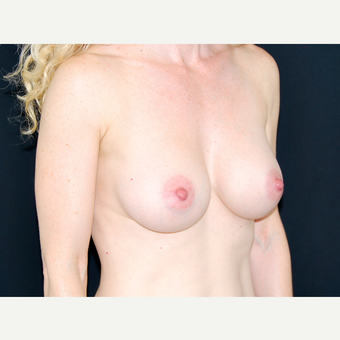 35-44 year old woman treated with Breast Implants after 3651335