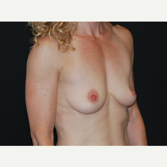 35-44 year old woman treated with Breast Implants before 3651335