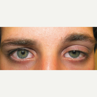 18-24 year old man treated with Ptosis Surgery for left congenital ptosis