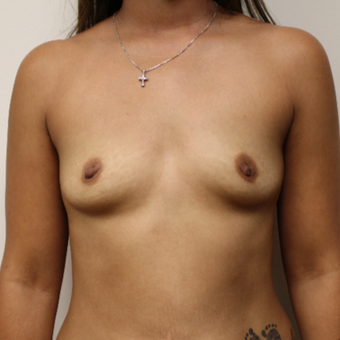 30 old woman treated with Breast Augmentation before 3417521