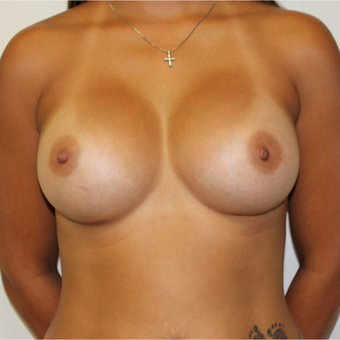 30 old woman treated with Breast Augmentation after 3417521