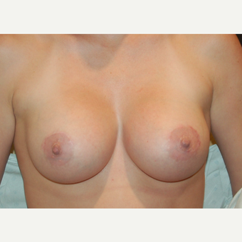 25-34 year old woman treated with Breast Augmentation after 3402556