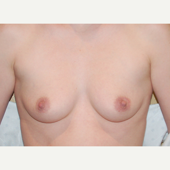 25-34 year old woman treated with Breast Augmentation before 3402556