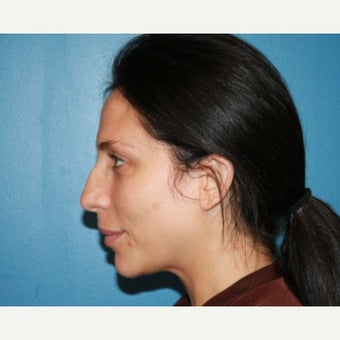25-34 year old woman treated with Rhinoplasty before 2288455