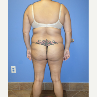 35-44 year old woman treated with Weight Loss before 3370145