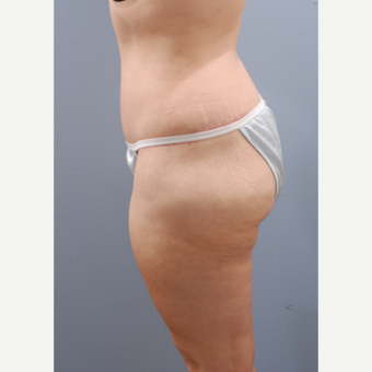 45-54 year old woman treated with Tummy Tuck after 3603920
