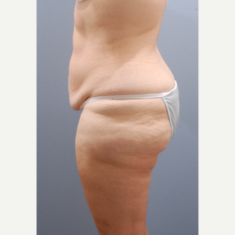 45-54 year old woman treated with Tummy Tuck before 3603920
