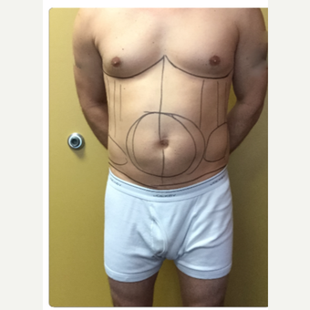 35-44 year old man treated with Smart Lipo before 3098130