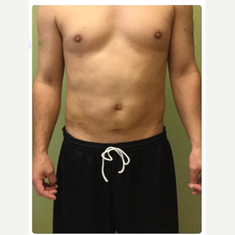 35-44 year old man treated with Smart Lipo after 3098130