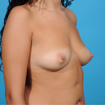 25-34 year old woman treated with Breast Augmentation before 3810877