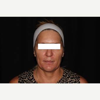 35-44 year old woman treated with Silhouette InstaLift before 3569562