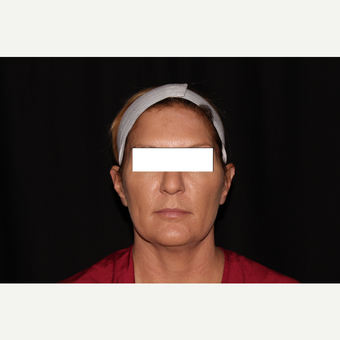 35-44 year old woman treated with Silhouette InstaLift after 3569562