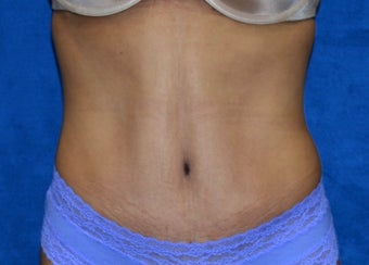 Poorly done Mini-tummy tuck