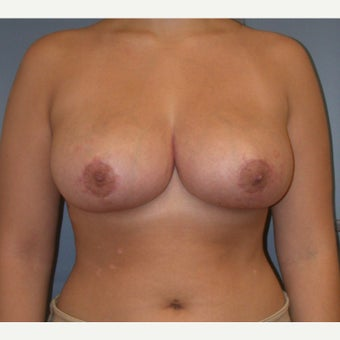 18-24 year old woman treated with Breast Reduction after 1537344