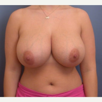 18-24 year old woman treated with Breast Reduction before 1537344