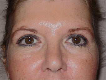 Blepharoplasty in 42 year old woman after 998582