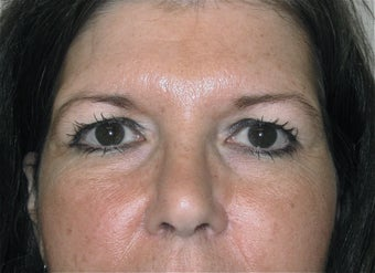Blepharoplasty in 42 year old woman before 998582