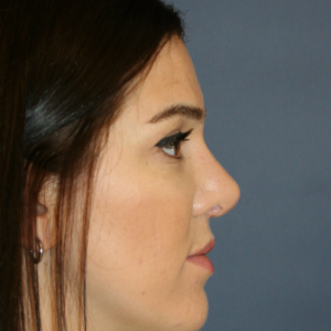 25-34 year old woman treated with Rhinoplasty after 3559830