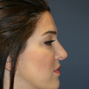 25-34 year old woman treated with Rhinoplasty before 3559830