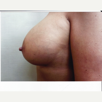35-44 year old woman treated with Breast Augmentation after 3523827