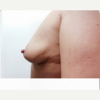 35-44 year old woman treated with Breast Augmentation before 3523827