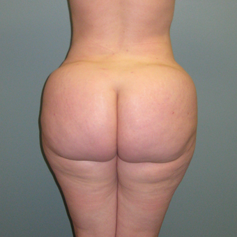 36 year old woman treated with Butt Augmentation after 1866229