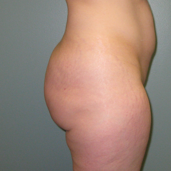 36 year old woman treated with Butt Augmentation 1866229