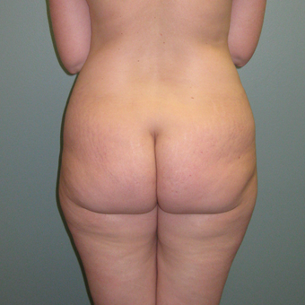 36 year old woman treated with Butt Augmentation before 1866229